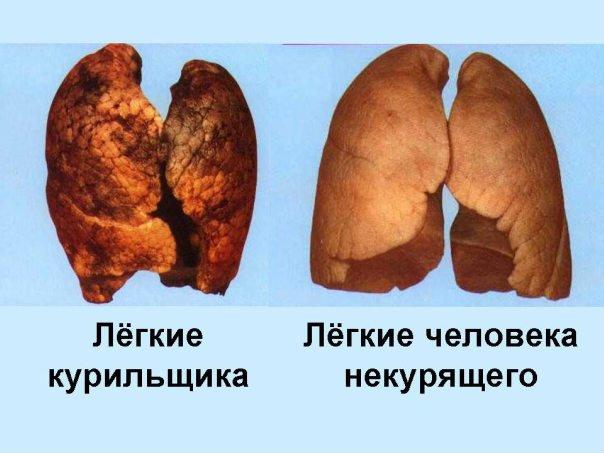 Кодировка от курения одесса