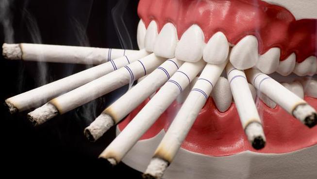 Импланты и курение форум